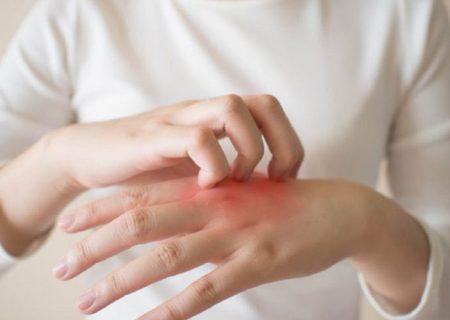 اگزمای دست و پا؛ علائم، پیشگیری و درمان