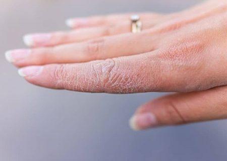 ۵ خوردنی مفید که خشکی پوست را برطرف میکنند